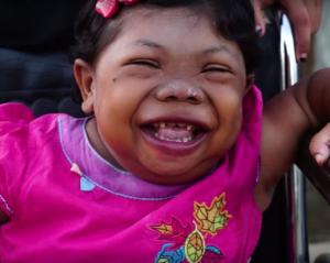 A tre anni smette di crescere: ecco la triste storia di Sari